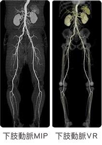 大動脈、下肢動脈CT検査:造影検査