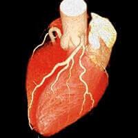冠動脈(心臓)CT検査