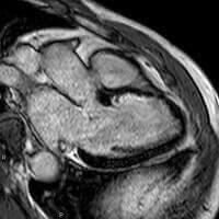 心筋遅延造影(LGE)MRI検査