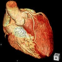 冠動脈 MRA検査