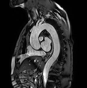 胸部大動脈