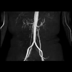 腹部大動脈